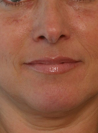 Juvederm before 260319