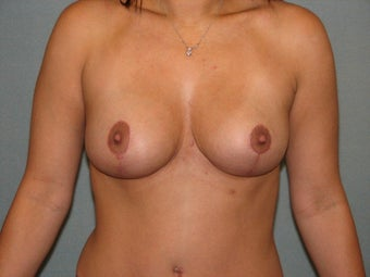 Breast lift after 508836