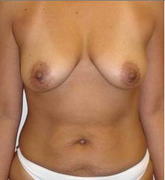 Breast Augmentation with full lift before 146445
