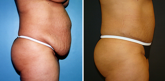 Tummy Tuck (Abdominoplasty) with Liposuction 262729