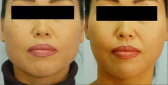 Botox Jaw Reduction