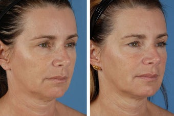 Radiesse & Botox Cosmetic after 356479