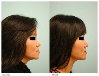 Asian Female Rhinoplasty before 136822