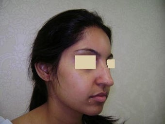 Rhinoplasty before 137959