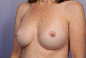 Breast Implants  after 305406