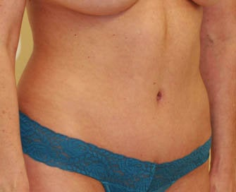 Abdominoplasty (Tummy Tuck) after 216683
