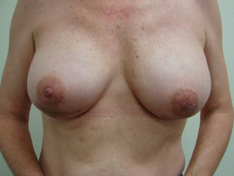 Breast Reconstruction Immediate  after 347580