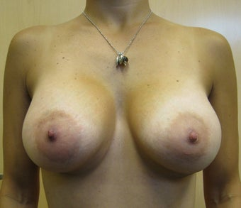 Breast Augmentation after 178946