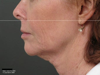 Ulthera Laser Skin Tightening before 346281