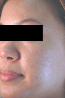 Laser Acne Treatment after 82975