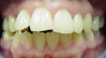 Invisalign  before 436998