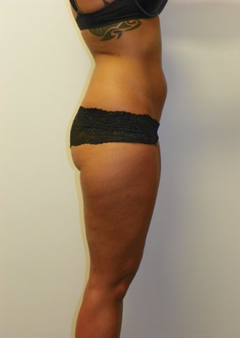 SMARTLIPO MPX before 235399