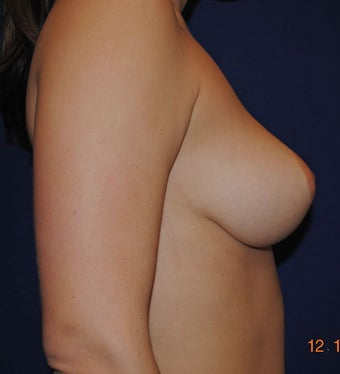Breast Reduction Surgery 402928