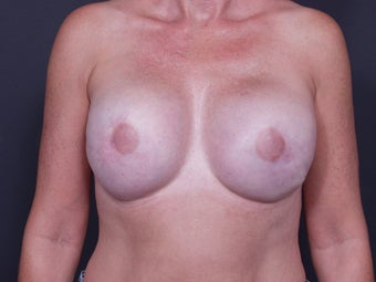 46 Year Old Female for Breast Reconstruction after 643179