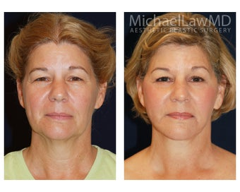 Cheek Augmentation before 415260