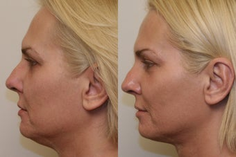 Ultherapy after 532607