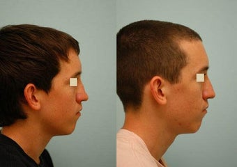 Revision/Corrective Rhinoplasty before 136571