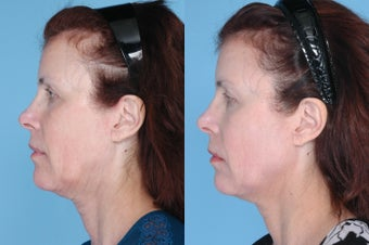 Ulthera Full Face and Neck before 378866