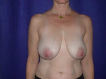 Breast Reduction before 205359