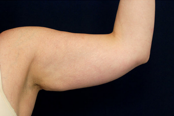 Liposuction - Upper Arms before 393164