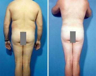 Liposuction before 636114