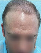 Mixed Head and Body Hair FUE – SFET Hair Transplantation from Nape, Beard, and Body Hair before 196024