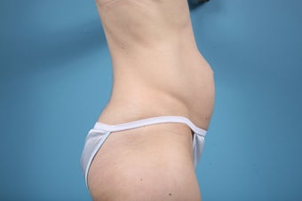 Abdominoplasty 609514