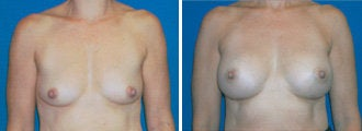 breast augmentation before 314009