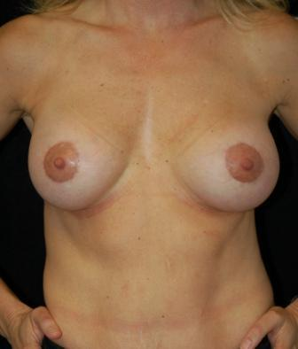 Breast Lift with Peri-areolar breast augmentation, gel implants after 392049