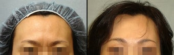 Endoscopic Brow Lift before 649389