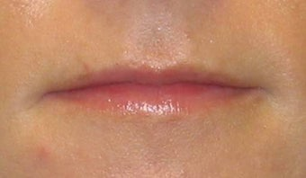 Juvederm before 53635
