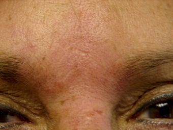 Immediate Improvement of a Forehead Wrinkle after 271680