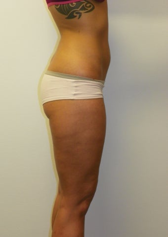 SMARTLIPO MPX after 235399