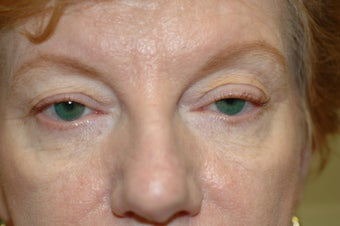 Cheek augmentation with cheek lift, ptosis repair, and elimination of festoons before 341472