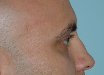 Non-Surgical Rhinoplasty before 118331