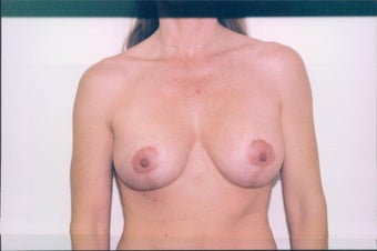 Breast Lift after 218956