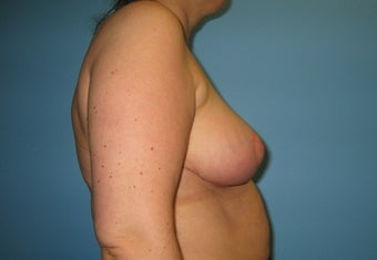 Breast reduction after 146999