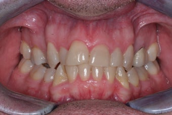 Smile makeover with Invisalign and Crowns before 372753