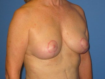 Mastopexy after 510742