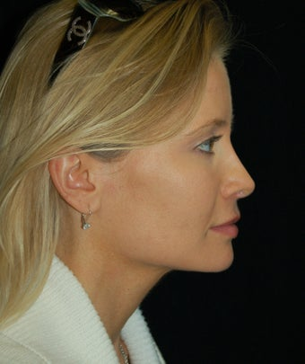 Revision Rhinoplasty after 392819