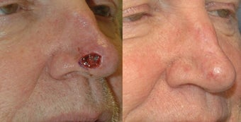 Nasal defect repair after Mohs skin cancer surgery before 581588