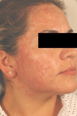 Laser Acne Treatment