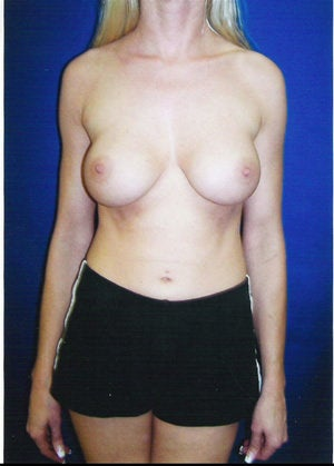 Revisionary Breast Augmentation before 89412