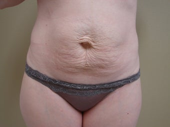 Tummy tuck  before 347575