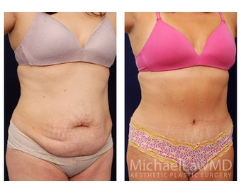 Abdominoplasty - Tummy Tuck after 396126
