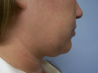 Liposuction to chin/neck area before 590814