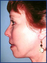 Mid facelift, lower facelift and upper blepharoplasty after 83177