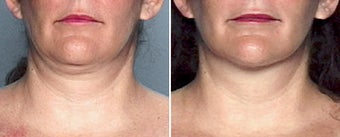 Liposuction of the Neck before 333084