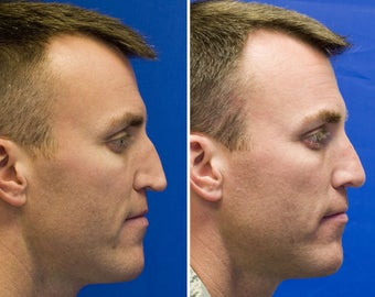 Revision Rhinoplasty with Rib cartilage graft after 295353