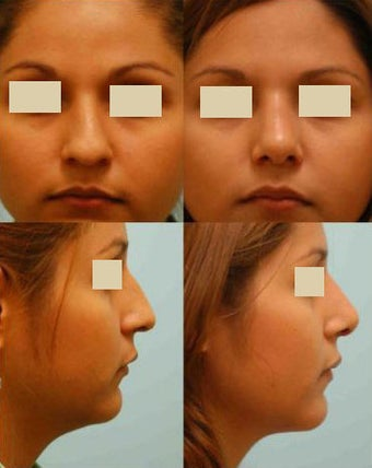 Revision/Corrective Rhinoplasty before 136564